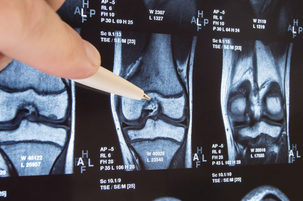 MRI Scan - Cause of knee and shin pain diagnosed - Stephen S. Chen, MD