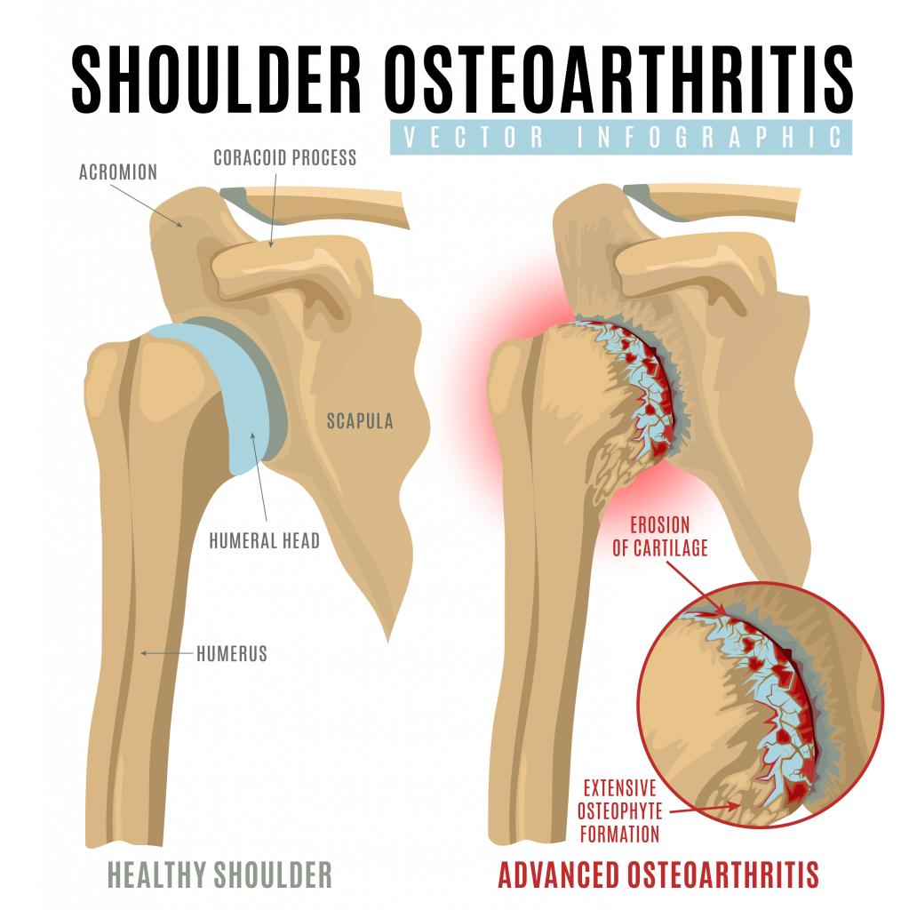 Osteoarthritis - shoulder injury - Stephen S. Chen-MD