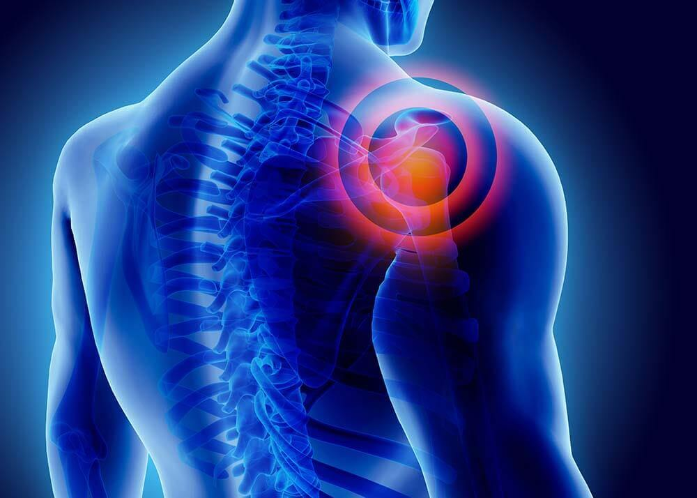 Shoulder Pain and Injuries - Stephen S. Chen, MD